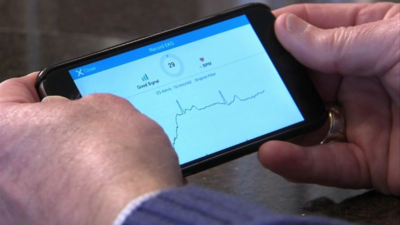 Smartphone displays a heart monitor