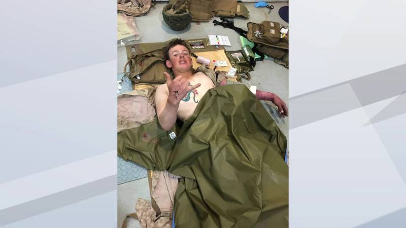 U.S. Marine Mike Gretzon is recovering from injuries in the Kabul bomb attack