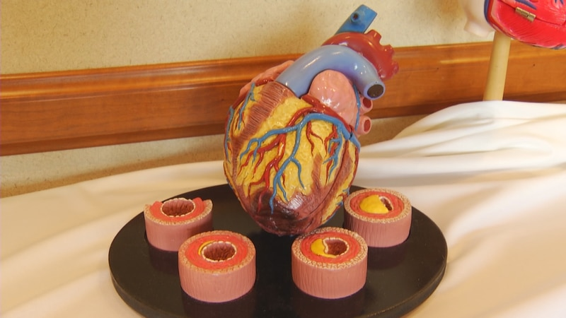 Doctors want to learn more about possible long-term effects COVID has on hearts.